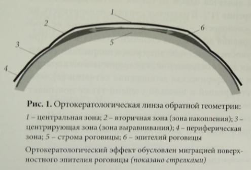 Ортосклеральная линза