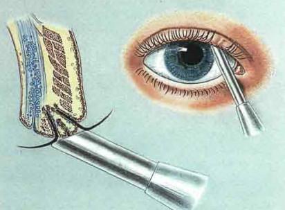 Лечение трихиаза методом криотерапии
