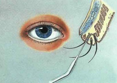 Лечение трихиаза методом электролиза
