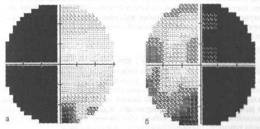 Битемпоральная гемианопсия при аденоме гипофиза