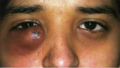 Осложнения ячменя на глазу.
