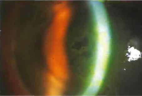 Эпителиально эндотелиальная дистрофия роговицы фото