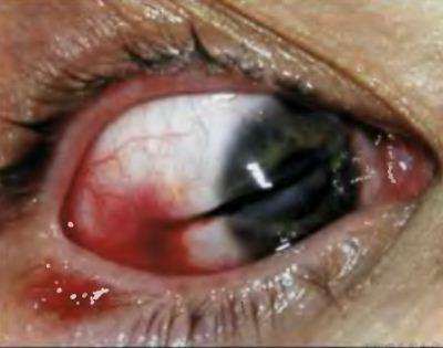 Проникающие склеральные ранения история болезни