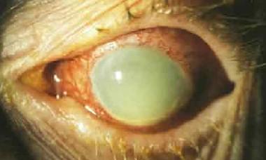 Факогенная глаукома