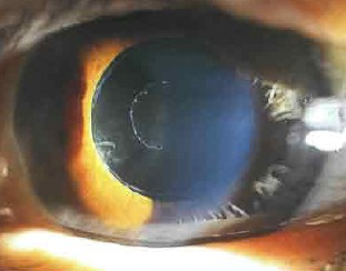 Первичная глаукома фото