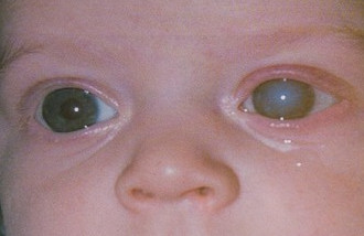 Врожденная глаукома
